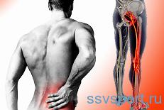 Симптомы защемления седалищного нерва у мужчин